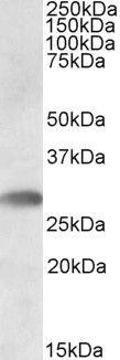 TREML1 Antibody (PA5-19179)