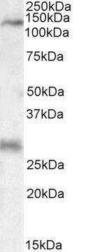 MEKK6 Antibody (PA5-19182) in Western Blot