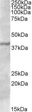 TFB1M Antibody (PA5-19183) in Western Blot
