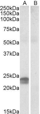 HMGA1 Antibody (PA5-19184)