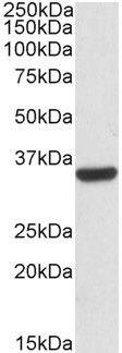 Calponin 2 Antibody (PA5-19185) in Western Blot