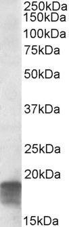 SDHAF1 Antibody (PA5-19194) in Western Blot