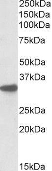 CYB5R3 Antibody (PA5-19196)