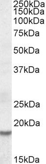 HMGA2 Antibody (PA5-19197) in Western Blot