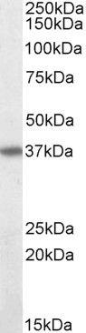 FAS Antibody (PA5-19198) in Western Blot