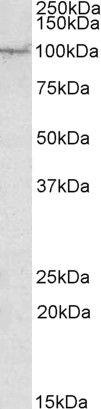 AAK1 Antibody (PA5-19202)