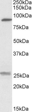 SLC4A11 Antibody (PA5-19207)
