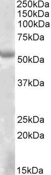 EYA1 Antibody (PA5-19220) in Western Blot
