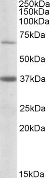 CPT2 Antibody (PA5-19223) in Western Blot