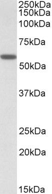 DIXDC1 Antibody (PA5-19232) in Western Blot