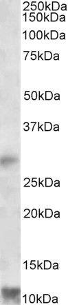RNF7 Antibody (PA5-19233) in Western Blot