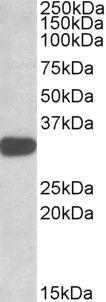 TIPRL Antibody (PA5-19241)