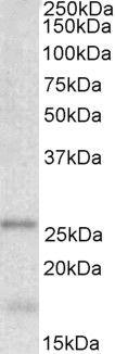 TPPP Antibody (PA5-19243) in Western Blot