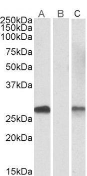DYDC1 Antibody (PA5-19251)
