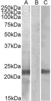Cystatin 8 Antibody (PA5-19252)