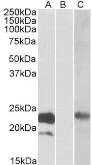 Cystatin 8 Antibody (PA5-19253)
