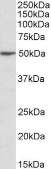 MON1A Antibody (PA5-19258) in Western Blot
