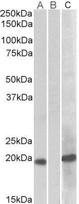 HOXA1 Antibody (PA5-19264)