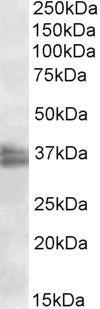 FRG1 Antibody (PA5-19287) in Western Blot