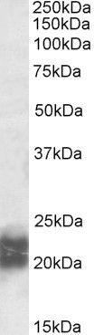NPC2 Antibody (PA5-19289)