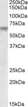 TTC8 Antibody (PA5-19300)