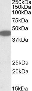 CXCR6 Antibody (PA5-19301) in Western Blot