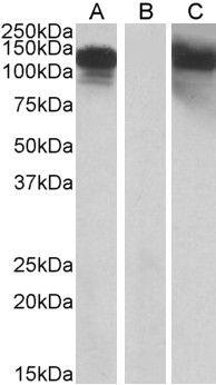CDH11 Antibody (PA5-19318) in Western Blot