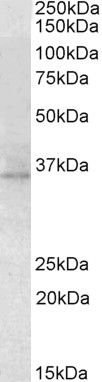 RDH5 Antibody (PA5-19319)