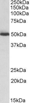 ALDH2 Antibody (PA5-19325) in Western Blot
