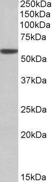 ALDH3A1 Antibody (PA5-19326)