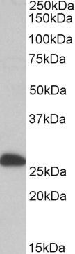 ETFB Antibody (PA5-19336) in Western Blot