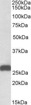 ETFB Antibody (PA5-19337) in Western Blot