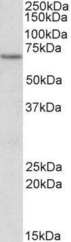 ETFDH Antibody (PA5-19340)