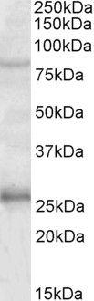 GPRIN3 Antibody (PA5-19346)