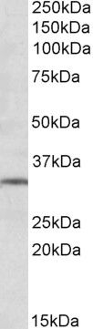 mGluR2 Antibody (PA5-19348)