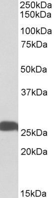 PGP9.5 Antibody (PA5-19349)