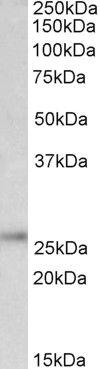 PGP9.5 Antibody (PA5-19350)