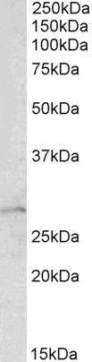 RhoGDI Antibody (PA5-19353) in Western Blot