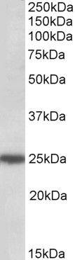 ARHGDIG Antibody (PA5-19354) in Western Blot