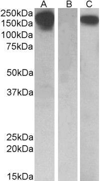 CSF1R Antibody (PA5-19364) in Western Blot