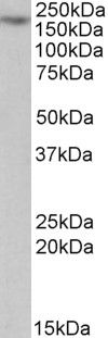 MYO5A Antibody (PA5-19366) in Western Blot