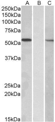 MGAT1 Antibody (PA5-19371) in Western Blot