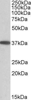 MOGAT2 Antibody (PA5-19372) in Western Blot