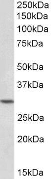 HOXC8 Antibody (PA5-19379)