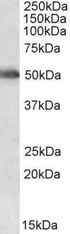CYP2E1 Antibody (PA5-19381) in Western Blot