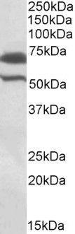 cIAP2 Antibody (PA5-19385) in Western Blot