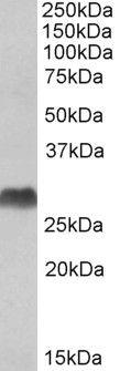 HLA-DQA1/DQA2 Antibody (PA5-19388)