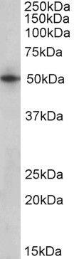 ARTS Antibody (PA5-19389) in Western Blot