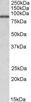 ALDH18A1 Antibody (PA5-19392)
