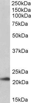 TMEM205 Antibody (PA5-19404)
